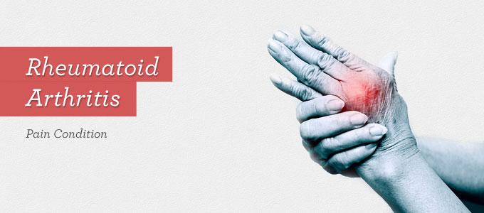 natural treatment for rheumatoid arthritis