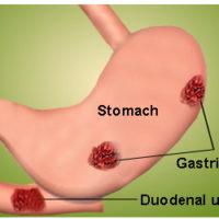 prevent gastric disease