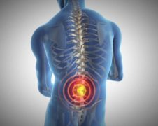 Information About Back Pain
